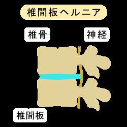 頸椎ヘルニア